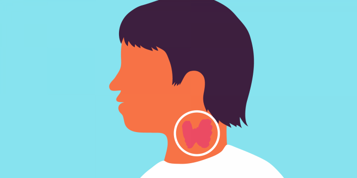 Health issues to the thyroid patients